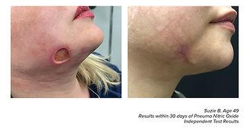 wound healing.jpg