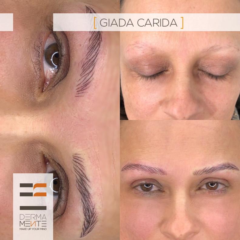 Sopracciglia su Alopecia