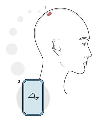 Neuralink Patient Journey