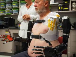 Próteses robóticas e implantes cerebrais marcaram ano de avanços