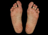 'Barefoot running' - what's all the fuss about?