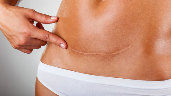 Abdominal Scar Tissue: Symptoms and Treatment