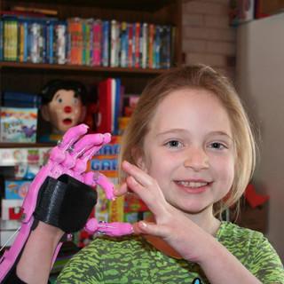 Shea's Hand Project