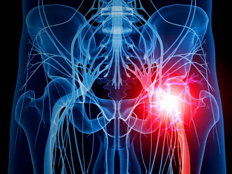 Can you have sciatic pain without a herniated disc?