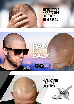 The ultimate hair loss solution (78).png