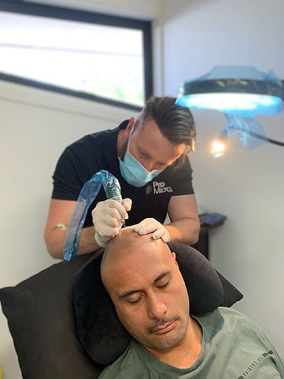 SMP_SMP_Gold_Coast_Scalp_Micro_Pigmentation_Gold_Coast_Scalp_Micro_Pigmentation_Australia_Hair_Loss_Solutions_treatments