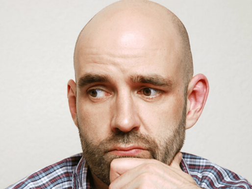 Male Pattern Baldness: What you need to know