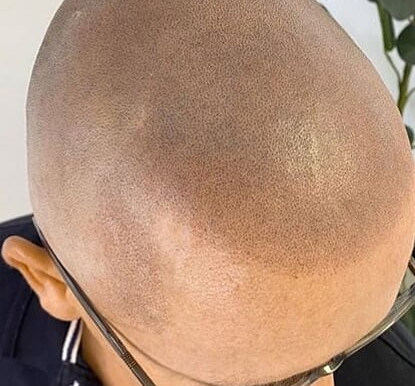 Considering Scalp Micro Pigmentation as a hair loss treatment?