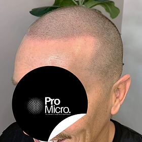 Scalp_Micro_Pigmentation_Gold_Coast_SMP_Gold_Coast_Scalp_Micro_Pigmentation_for_hair_loss_solutions_gallery