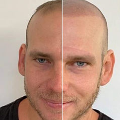 Kyle before and after.jpeg