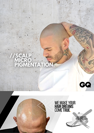 The ultimate hair loss solution (86).png