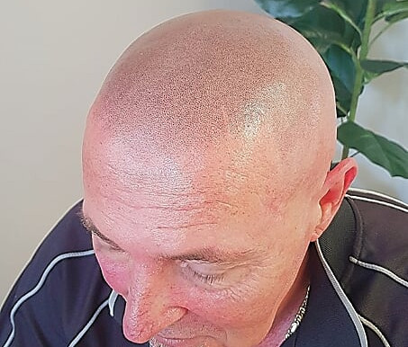 Blending Scalp Micro Pigmentation ink for perfect colour matching