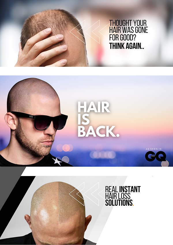 The ultimate hair loss solution (70).png