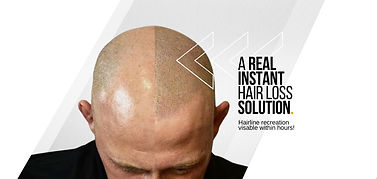 real%20instant%20hair%20loss%20solution_