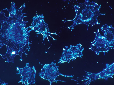 The spread of cancer into metastases
