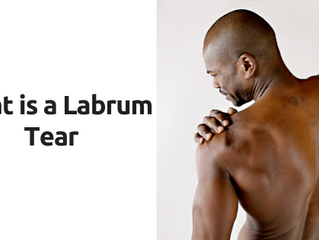 What is a Labrum Tear?