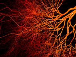 blood vessel.3