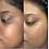Thumbnail: Hyperpigmentation Facial Oil