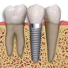 Dental_Implant_teeth.jpg