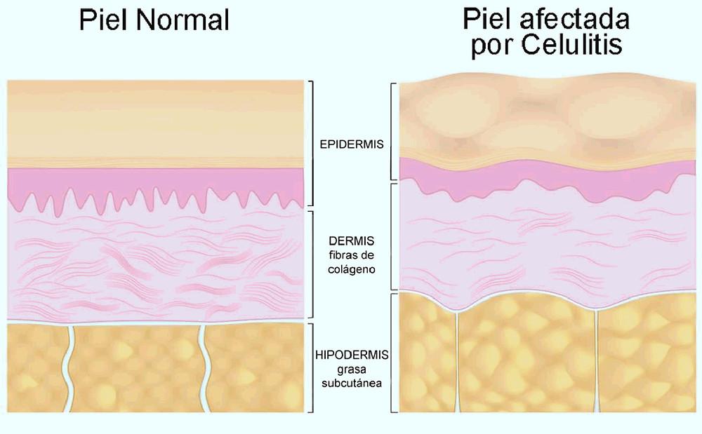 esquema capas de piel