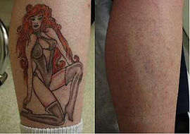 Before+After Laser X tattoo Removal