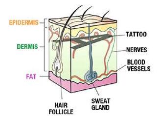 Laser Tattoo Removal Skin Diagram
