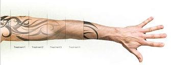 Laser Tattoo Removal Progress