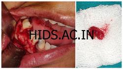 Enucleation of radicular cyst