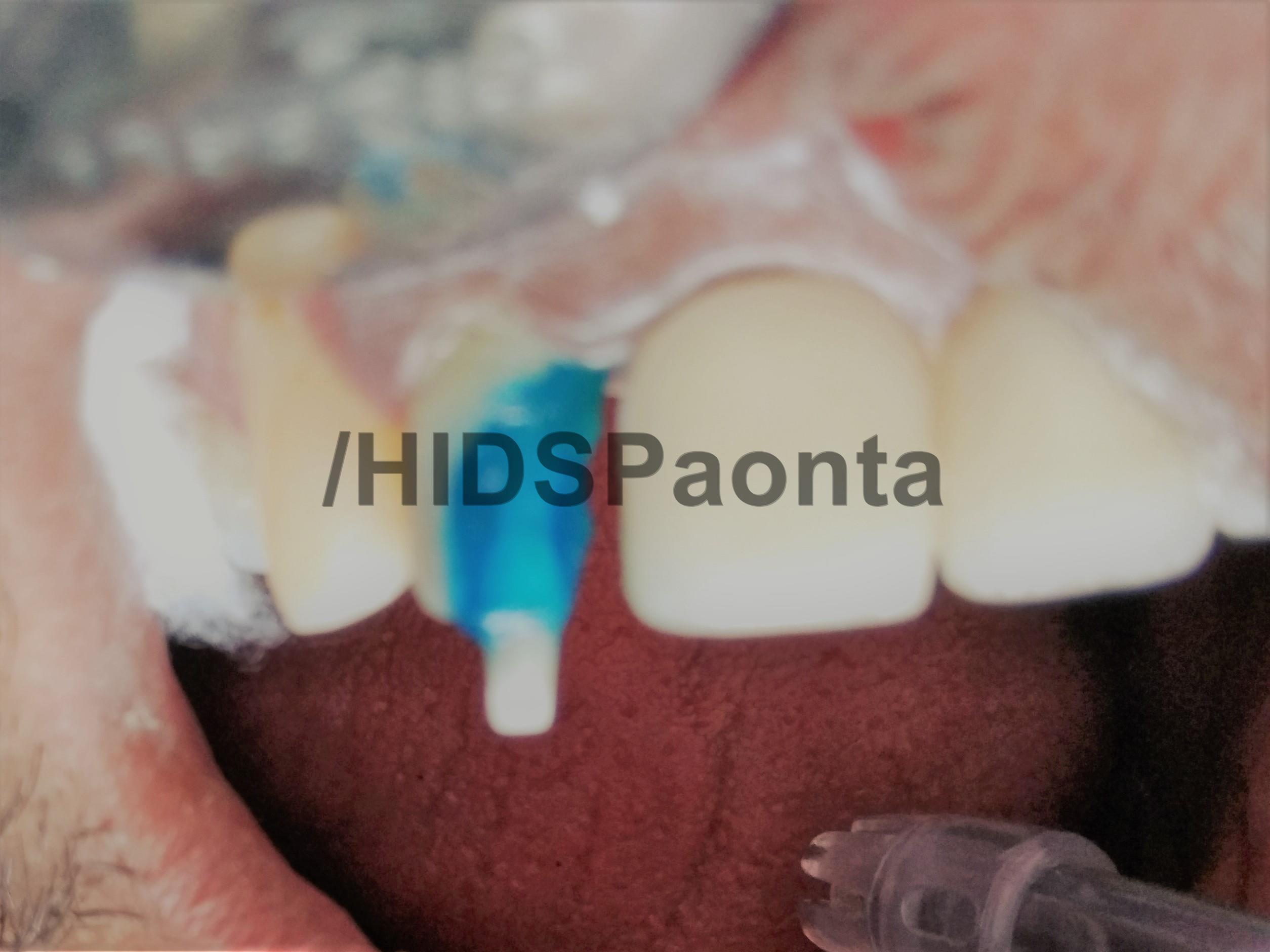 Endo_HIDS_Paonta_010117 (9)