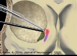 Νευρο - παρακολούθηση