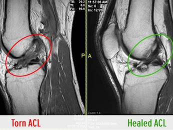 Can the ACL Spontaneously Heal After Rupture?