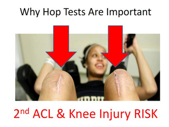 DOUBLE ONLINE ACL PRESENTATION!!