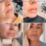 lips02.jpg
