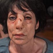 Broken Nose Woman