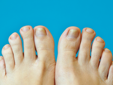 Ingrown toenail: How to prevent, manage and treat an ingrown nail.