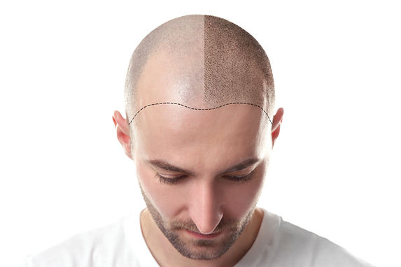 hair transplan.jpg