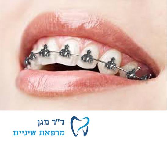 חיבור בין עולמות - Teeth.jpg