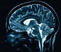brain6.jpg