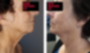 BeforeAfterFace&Neck.png