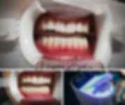 TEETH WHITENING 1 x 45minute.png