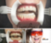 TEETH WHITENING 1 x 45minute (2).png