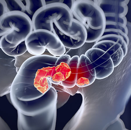 """""""45 is the New 50"""" When it Comes to Colorectal Cancer Screening"""