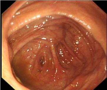 Appendix opening seen