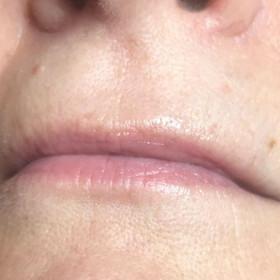 Lips 3 b.JPG