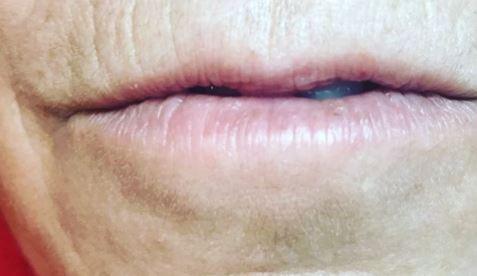 Lips 2 b.JPG