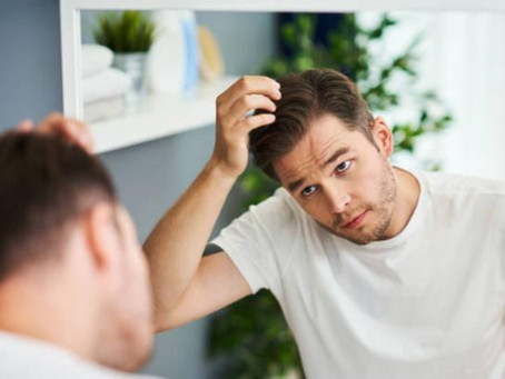 Going Bald? A Brief Guide on Men's Hair Loss