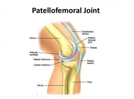 Patella-Femoral Pain Syndrome (PFPS)
