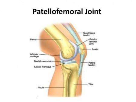 Patella-Femoral Pain Syndrome (PFPS)