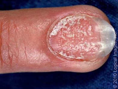 Psoríase Artrite Psoriásica