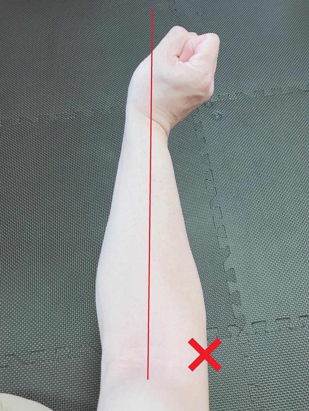 肘 外側の痛み